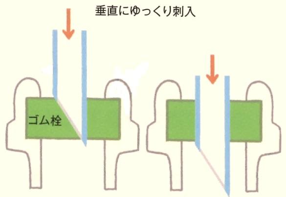 垂直に刺入した針の模式図