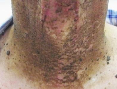 わずかな紅斑や 乾性落屑のある写真