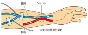 シャントの構造説明図