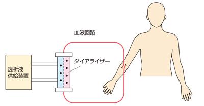 血液透析の流れ説明図