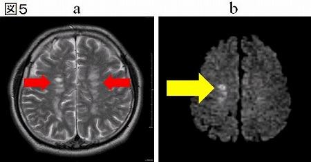 a:T2強調像、b:拡散強調像で同様の部位を撮像したもの
