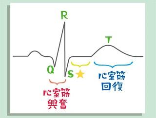心室筋の興奮・回復を反映する心電図波形