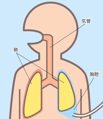 液体を排出する場合の図