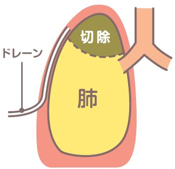 ドレーンチューブの留置位置説明図