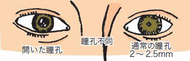瞳孔の変化説明図