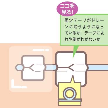 正しい固定の仕方説明図