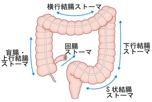 図1 消化管ストーマの造設部位