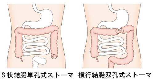 図2 結腸ストーマの種類