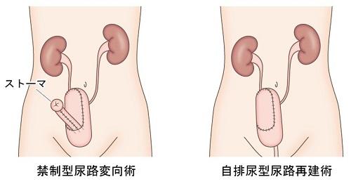 図5 尿路変更術・尿路再建術