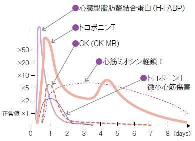 血液生化学的心筋マーカーグラフ