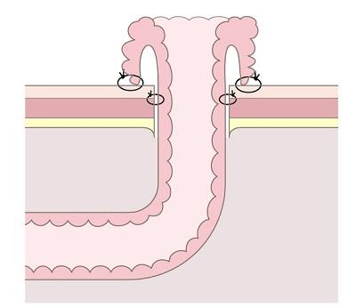 尿管皮膚瘻のストーマ(突出型)