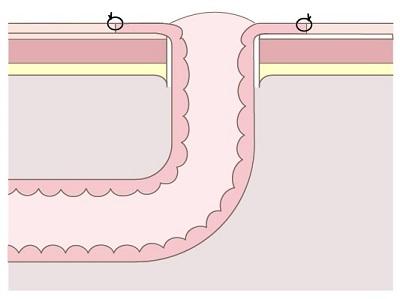 尿管皮膚瘻のストーマ(平坦型)