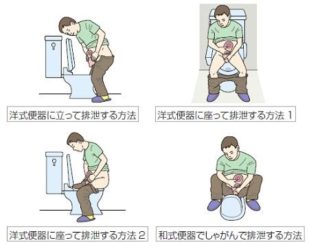 便器での排泄物を捨てる姿勢の例、イラスト