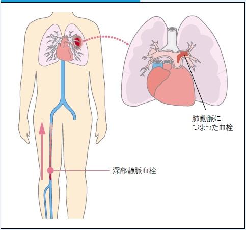 血栓が下肢から肺に至る図