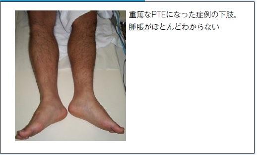 重篤な肺血栓塞栓症になった下肢