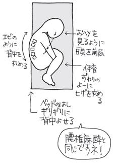 硬膜外麻酔の穿刺部位4