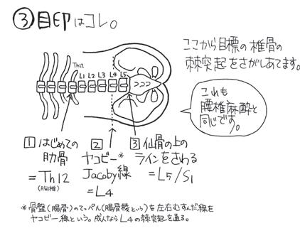 硬膜外麻酔の穿刺部位5