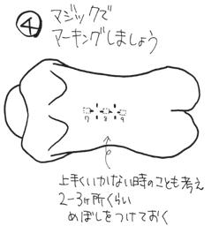 硬膜外麻酔の穿刺部位6