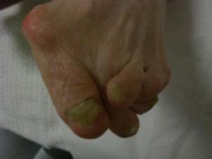 変形した足の見本