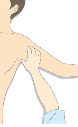 腋窩の間接圧迫止血