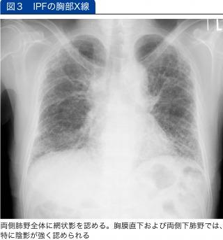 IPFの胸部X線