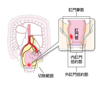 約筋間直腸切除術