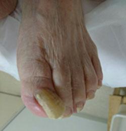 巻き爪症例2