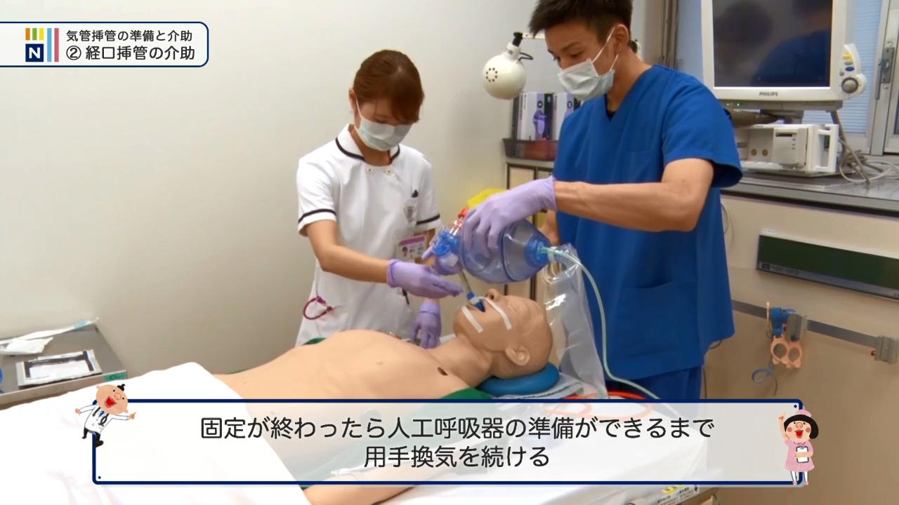 気管 挿管 医療