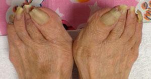 変形爪の足