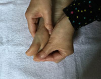 指の裏をつまむ