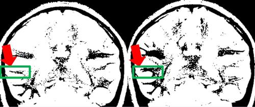 脳のMRI2