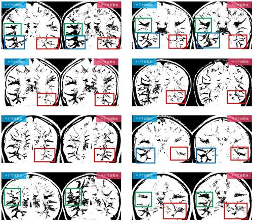 脳のMRI結果
