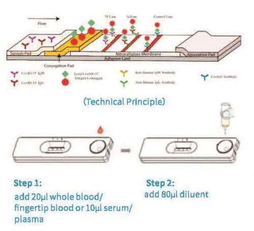 抗体検査の特徴